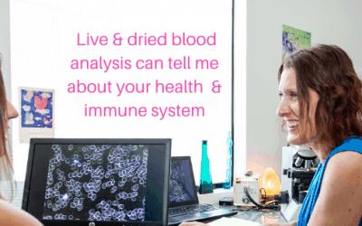 Boost your immune system & prevent viruses naturally
